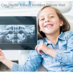 Can Dental X-Rays Increase Cancer Risk?