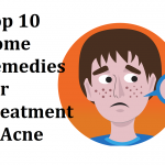 Top 10 Home Remedies For Treatment of Acne